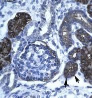 Immunohistochemistry (Formalin/PFA-fixed paraffin-embedded sections) - Anti-GPBP1 antibody (ab42457)