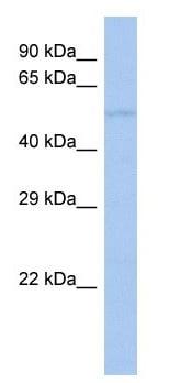 Western blot - Anti-HIC5 antibody (ab42476)