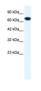 Western blot - Anti-ZNF179/BFP antibody (ab42499)