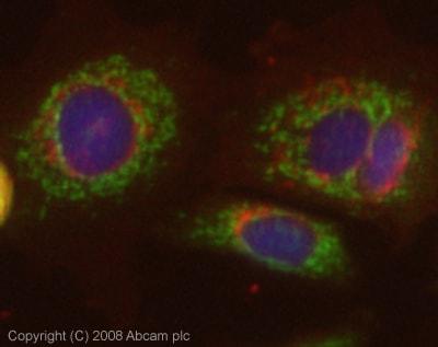 Immunocytochemistry/ Immunofluorescence - Anti-AE2 antibody (ab42687)