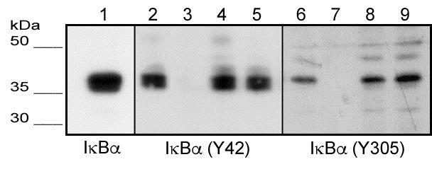 Blocking - Active human IKB alpha (phospho Y42) peptide (ab42716)