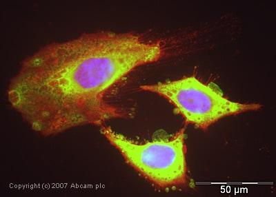 Immunocytochemistry/ Immunofluorescence - Anti-Cofilin antibody (ab42824)