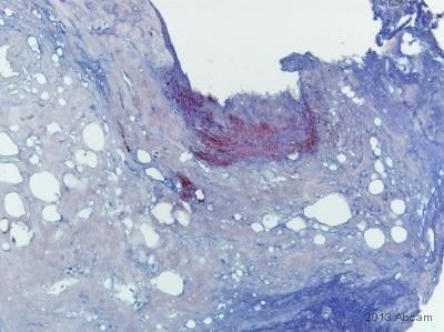 Immunohistochemistry (Formalin/PFA-fixed paraffin-embedded sections) - Anti-Mycobacterium tuberculosis Ag85B antibody (ab43019)