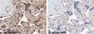 Immunohistochemistry (Formalin/PFA-fixed paraffin-embedded sections) - Anti-YWHAE antibody (ab43057)