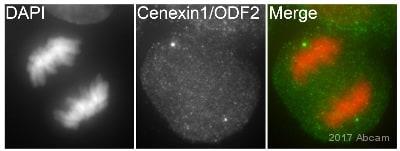 Immunocytochemistry/ Immunofluorescence - Anti-Cenexin1/ODF2 antibody (ab43840)