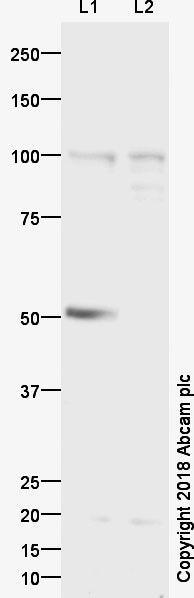 Western blot - Anti-Cenexin1/ODF2 antibody (ab43840)