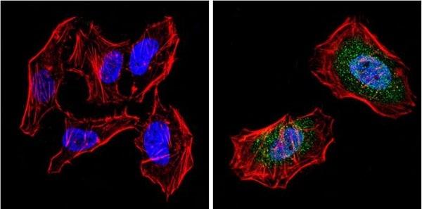Immunocytochemistry/ Immunofluorescence - Anti-PPAR gamma antibody - ChIP Grade (ab45036)