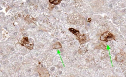 Immunohistochemistry (Formalin/PFA-fixed paraffin-embedded sections) - Anti-RANKL antibody [12A668] - BSA and Azide free (ab45039)