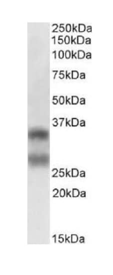 Western blot - Anti-RANKL antibody [12A668] - BSA and Azide free (ab45039)
