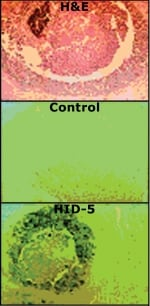 Immunohistochemistry (Formalin/PFA-fixed paraffin-embedded sections) - Anti-Psoriasin antibody [47C1068] (ab45091)