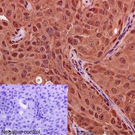 Immunohistochemistry (Formalin/PFA-fixed paraffin-embedded sections) - Anti-Hsp70 antibody [EP1007Y] (ab45133)
