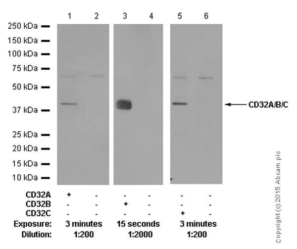 Western blot - Anti-CD32B antibody [EP888Y] (ab45143)