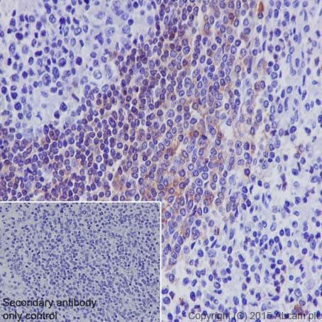 Immunohistochemistry (Formalin/PFA-fixed paraffin-embedded sections) - Anti-CD32B antibody [EP888Y] (ab45143)
