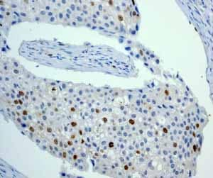 Immunohistochemistry (Formalin/PFA-fixed paraffin-embedded sections) - Anti-Aurora B antibody [EP1009Y] (ab45145)