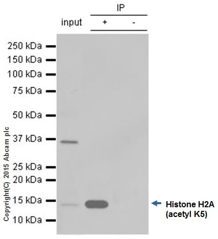 Immunoprecipitation - Anti-Histone H2A (acetyl K5) antibody [EP856Y] (ab45152)
