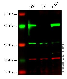 Western blot - Anti-LIMK2 antibody [EP969Y] - C-terminal (ab45165)