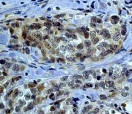 Immunohistochemistry (Formalin/PFA-fixed paraffin-embedded sections) - Anti-LIMK2 antibody [EP969Y] - C-terminal (ab45165)
