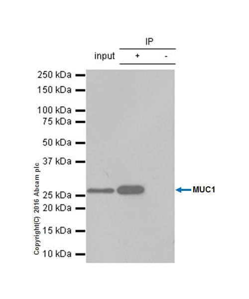 Immunoprecipitation - Anti-MUC1 antibody [EP1024Y] (ab45167)