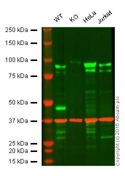 Western blot - Anti-EEF2K antibody [EP881Y] (ab45168)