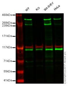 Western blot - Anti-Huntingtin antibody [EP867Y] (ab45169)