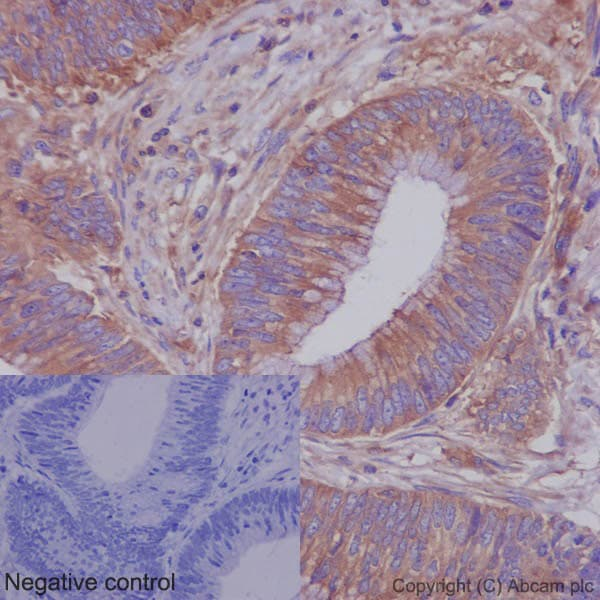 Immunohistochemistry (Formalin/PFA-fixed paraffin-embedded sections) - Anti-ROCK2 + ROCK1 antibody [EP786Y] (ab45171)