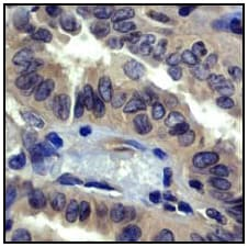 Immunohistochemistry (Formalin/PFA-fixed paraffin-embedded sections) - Anti-ROCK1 antibody [EP786Y] (ab45171)