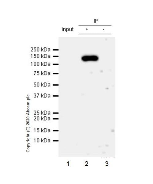 Immunoprecipitation - Anti-Interferon alpha/beta receptor 1 antibody [EP899Y] (ab45172)