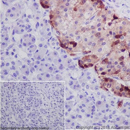 Immunohistochemistry (Formalin/PFA-fixed paraffin-embedded sections) - Anti-Chromogranin A antibody (ab45179)