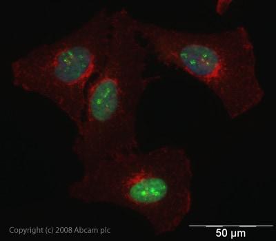 Immunocytochemistry/ Immunofluorescence - Anti-hnRNP L antibody (ab45317)