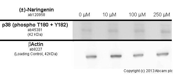 Western blot - Anti-p38 (phospho T180 + Y182) antibody [M139] (ab45381)