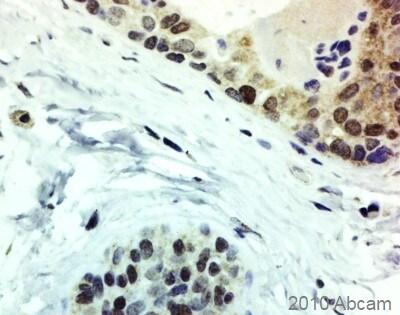 Immunohistochemistry (Formalin/PFA-fixed paraffin-embedded sections) - Anti-Superoxide Dismutase 1 antibody (ab45777)