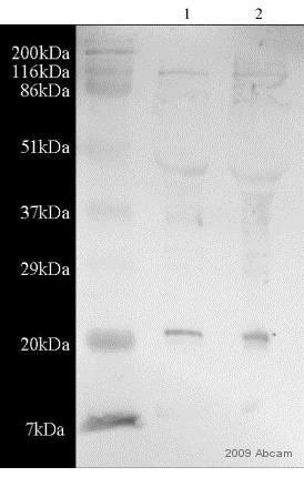 Western blot - Anti-Superoxide Dismutase 1 antibody (ab45777)