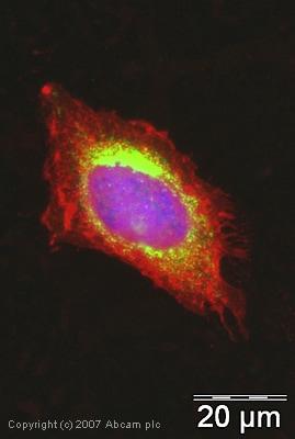 Immunocytochemistry/ Immunofluorescence - Anti-Superoxide Dismutase 1 antibody (ab45777)