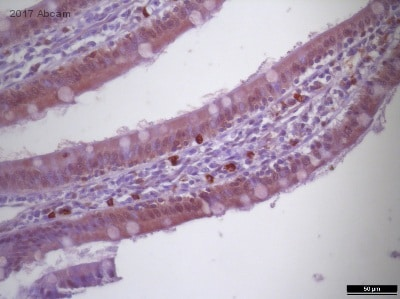 Immunohistochemistry (Formalin/PFA-fixed paraffin-embedded sections) - Anti-Cannabinoid Receptor II antibody (ab45942)