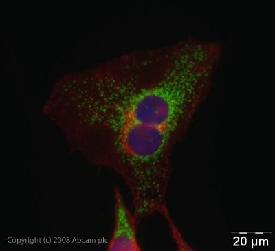Immunocytochemistry/ Immunofluorescence - Anti-CPS1 antibody (ab45956)
