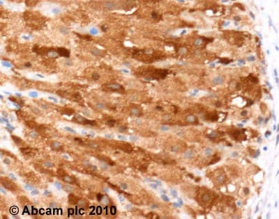 Immunohistochemistry (Formalin/PFA-fixed paraffin-embedded sections) - Anti-IL-17F antibody (ab46000)