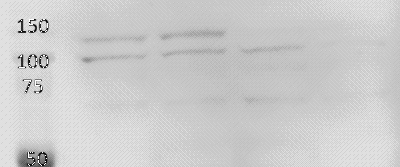 Western blot - Anti-RNF31/HOIP antibody (ab46322)