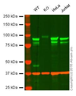 Western blot - Anti-EEF2K antibody [EP724Y] (ab46787)
