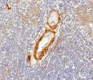 Immunohistochemistry (Formalin/PFA-fixed paraffin-embedded sections) - Anti-Calponin 1 antibody [EP798Y] (ab46794)