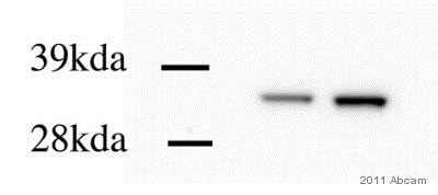 Western blot - Anti-Calponin 1 antibody [EP798Y] (ab46794)