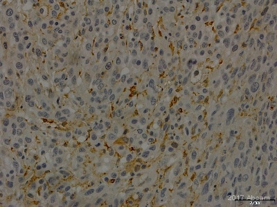 Immunohistochemistry (Formalin/PFA-fixed paraffin-embedded sections) - Anti-alpha 1 Fetoprotein antibody (ab46799)