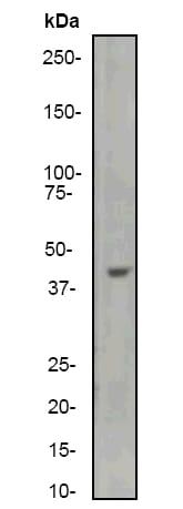 Western blot - Anti-muscle Actin antibody [EP184E] (ab46805)