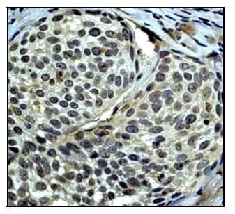 Immunohistochemistry (Formalin/PFA-fixed paraffin-embedded sections) - Anti-IRS2 antibody [EP903Y] (ab46811)
