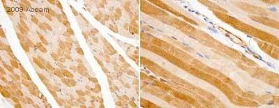Immunohistochemistry (Formalin/PFA-fixed paraffin-embedded sections) - Anti-Lactate Dehydrogenase antibody (ab47010)