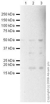Western blot - Anti-CD40 antibody [B-B20] (ab47021)