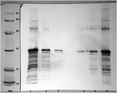 Western blot - Anti-Angiopoietin-like 4/ANGPTL4 antibody (ab47046)