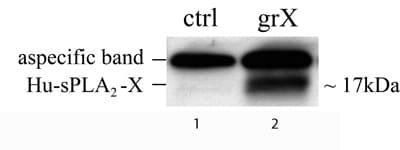 Western blot - Anti-Phospholipase A2 X antibody (ab47111)