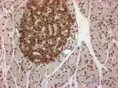 Immunohistochemistry (Formalin/PFA-fixed paraffin-embedded sections) - Anti-PDX1 antibody (ab47267)