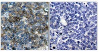 Immunohistochemistry (Formalin/PFA-fixed paraffin-embedded sections) - Anti-VASP (phospho S157) antibody (ab47268)