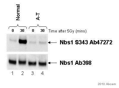 Western blot - Anti-p95/NBS1 (phospho S343) antibody (ab47272)